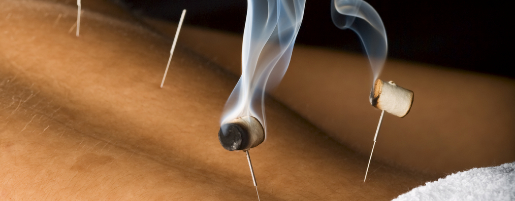 Acupuncture naas kildare